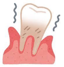 歯が揺れる